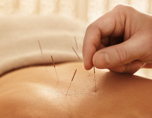 Cwc-_acupuncture